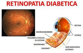 Screening sulla retino-patia diabetica