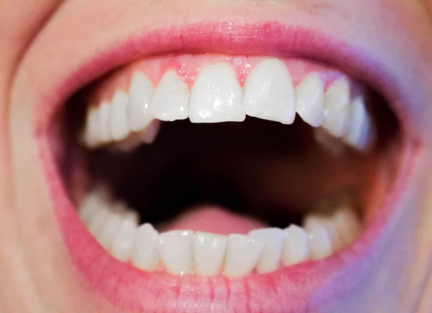 Prevenzione Dentale : l'igiene quotidiana dei denti